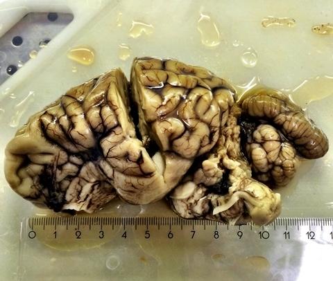 Cerebro de un reno enfermo de caquexia crónica