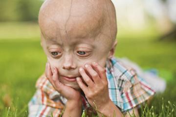 Niño con progeria como carátula de Coffee Break en el episodio: Operación CB:Marte; Darwinismo Lingüístico; OpenAI: Creación de Textos; Reparación Neuronal; CRISPR vs Progeria