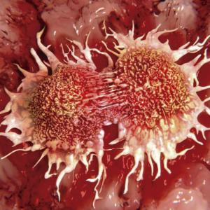 Representación en 3D de dos células malignas dividiéndose como carátula del episodio de Coffee Break: Premio Abel: Karen Uhlenbeck; Genética y Jack el Destripador; Supercontinentes; Metástasis; Íberos Arcaicos