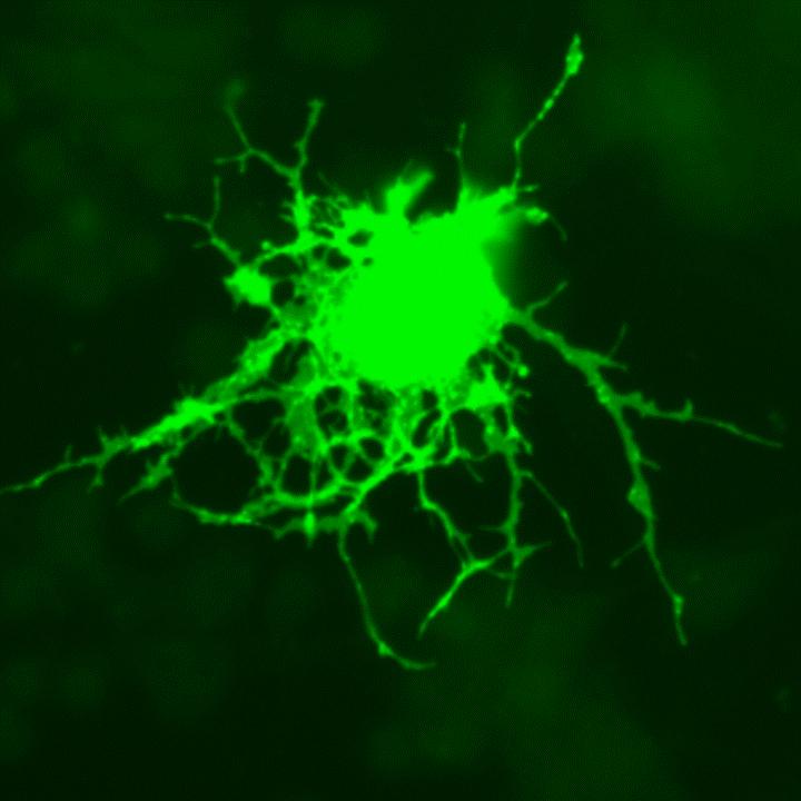 Un oligodendrocito marcado con proteína verde fluorescente como carátula del episodio de Coffee Break: Vacío cuántico; lenguas asiáticas; estrella rara; Alzheimer; exoluna y controversia
