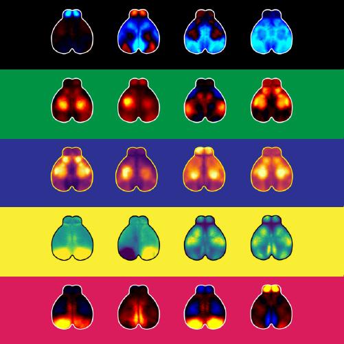 Collage artístico de cerebros de ratón obtenidos mediante resonancia magnética funcional por la doctora Churchland