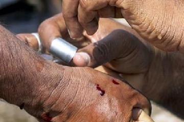 Una sangría como portada del vídeo de Diario de un MIR: ¿Podemos confiar en la evidencia científica?