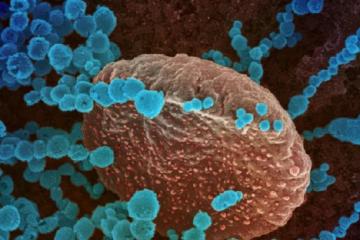 Coronavirus (gránulos azules) vistos al microscopio electrónico de barrido como portada del capítulo de a Ciencia Cierta: Especial Coronavirus
