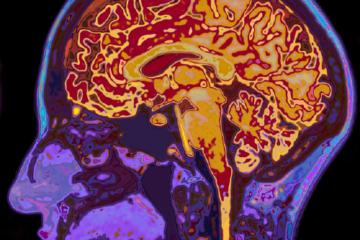 Imagen tomográfica del cerebro coloreando sus diferentes estructuras.